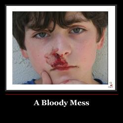 The nosebleed